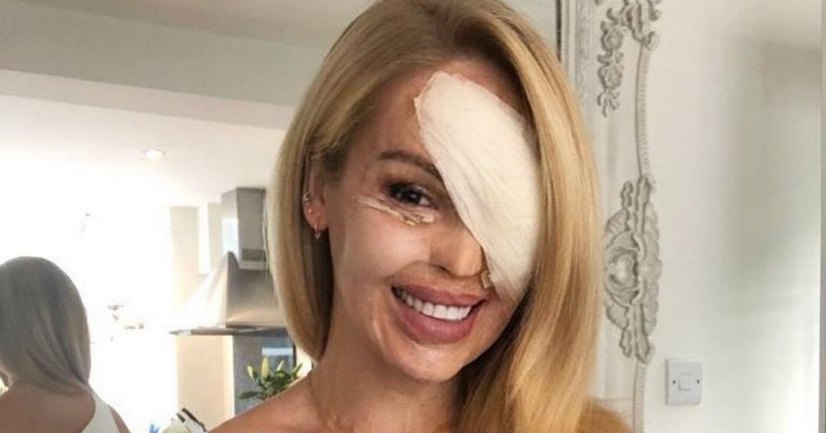 Katie Piper's emotional letter to NHS for taking her from 'victim to survivor'