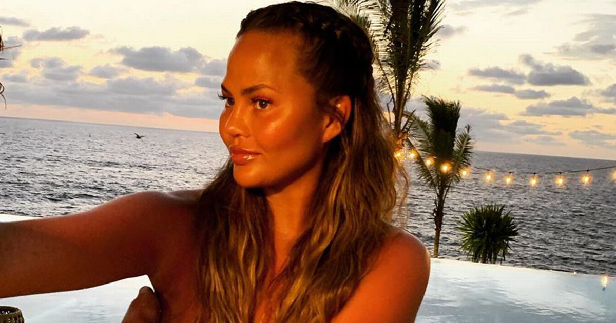 Chrissy Teigen shares breast implant removal surgery pics to prove it was done