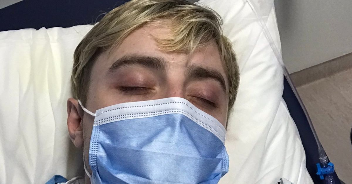 Jedward's Edward Grimes undergoes surgery after horrific accident ten years ago