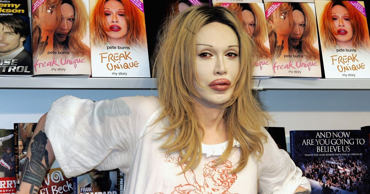 Tragic end of Pete Burns after fame, drugs and spiral into bankruptcy