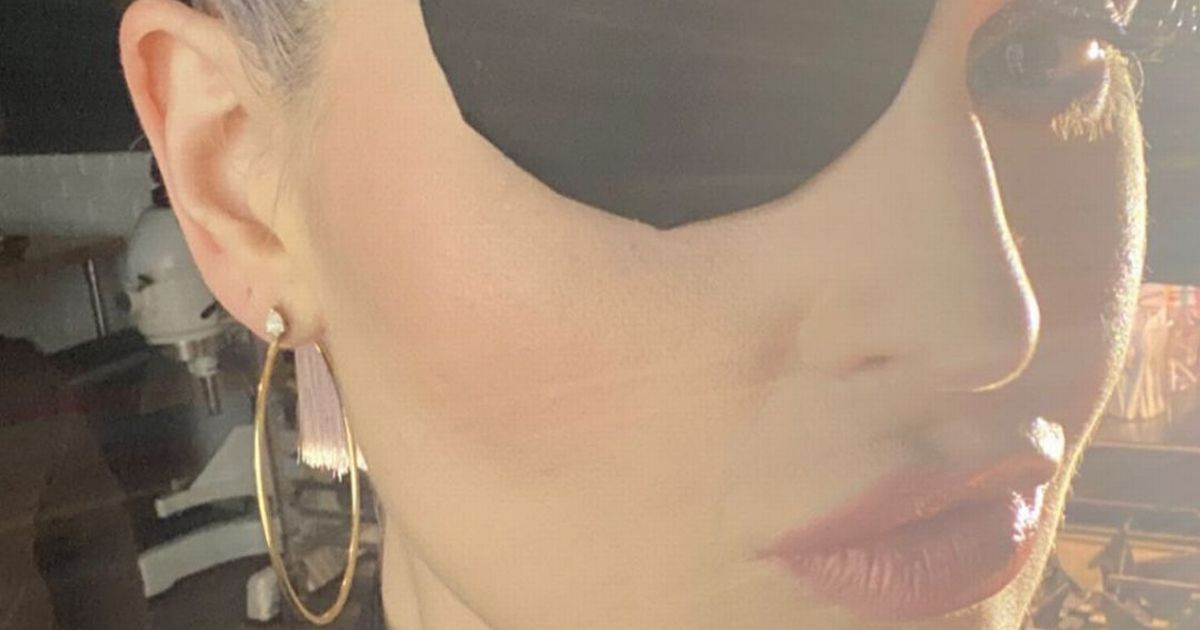 Kelly Osbourne forced to wear an eye patch after painful makeup disaster