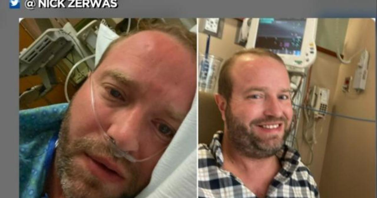 Former Minnesota state representative describes harrowing COVID-19 recovery
