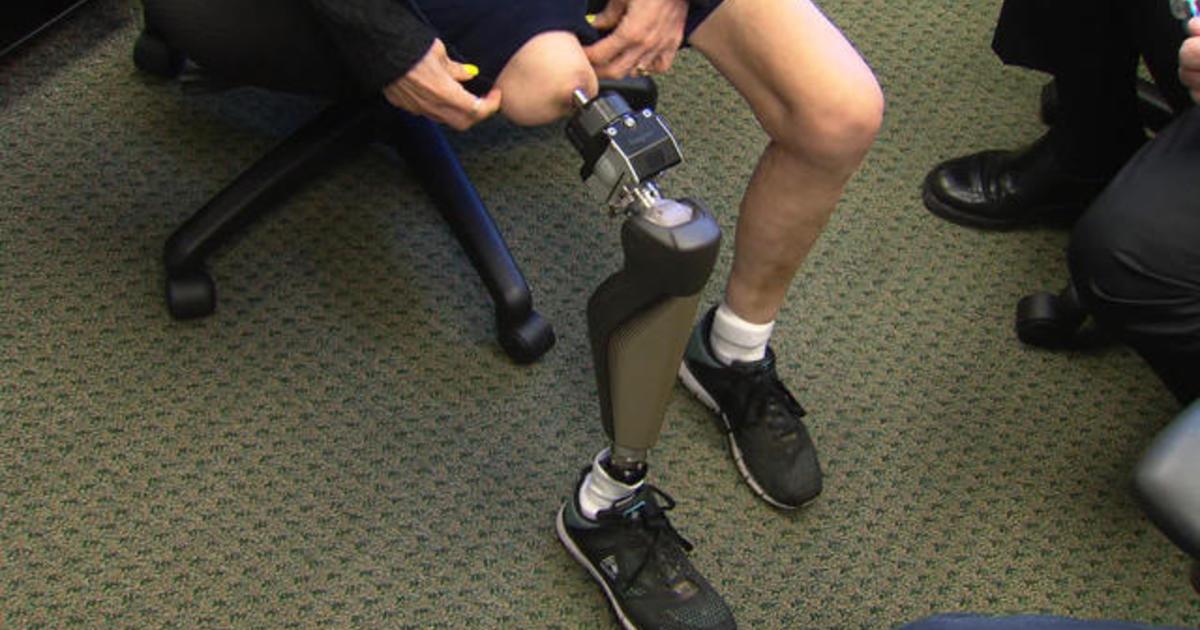 A giant step forward in artificial legs