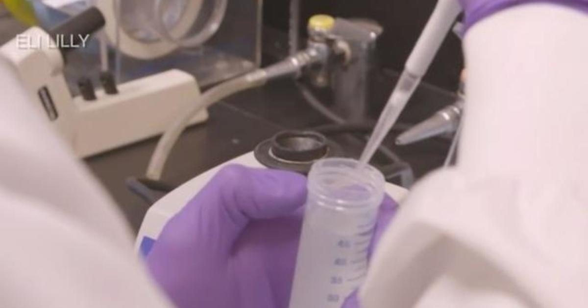 Progress towards COVID vaccine and treatment raise hopes as cases surge